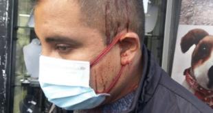 Beto Astorga denuncia que fue atacado por Gustavo Torrico. Foto CC..